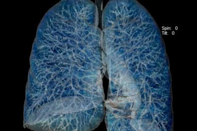 tomografia-computadorizada-com-iodo