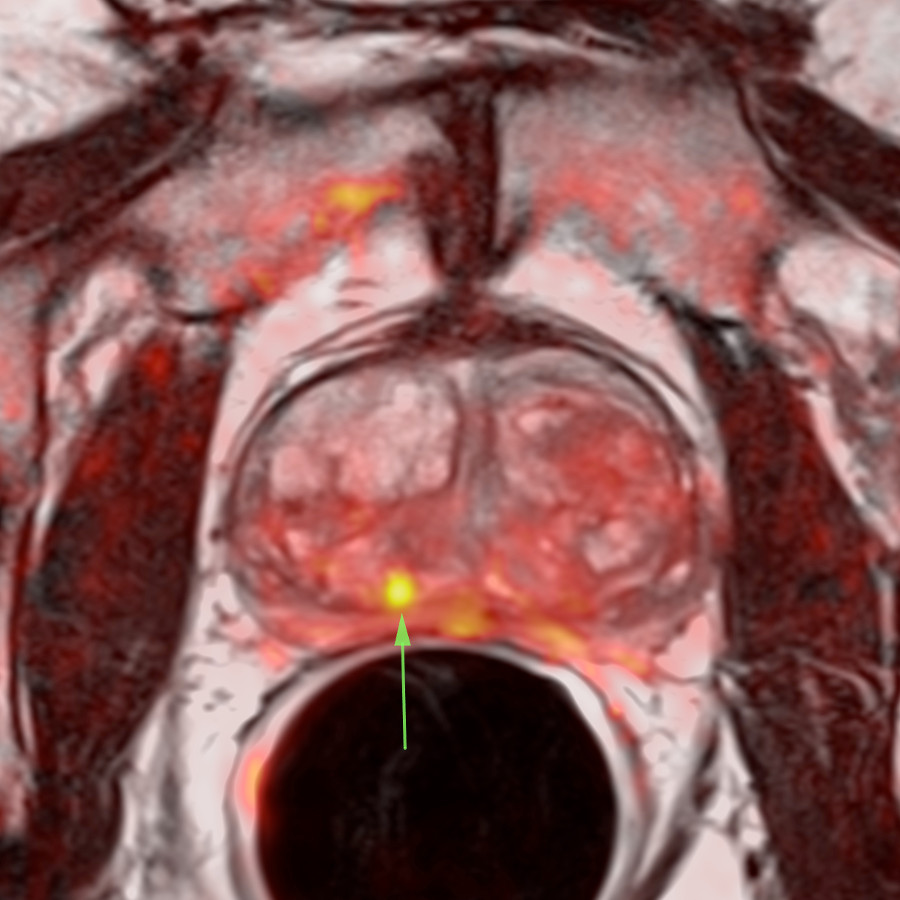 ressonancia-magnetica-prostata