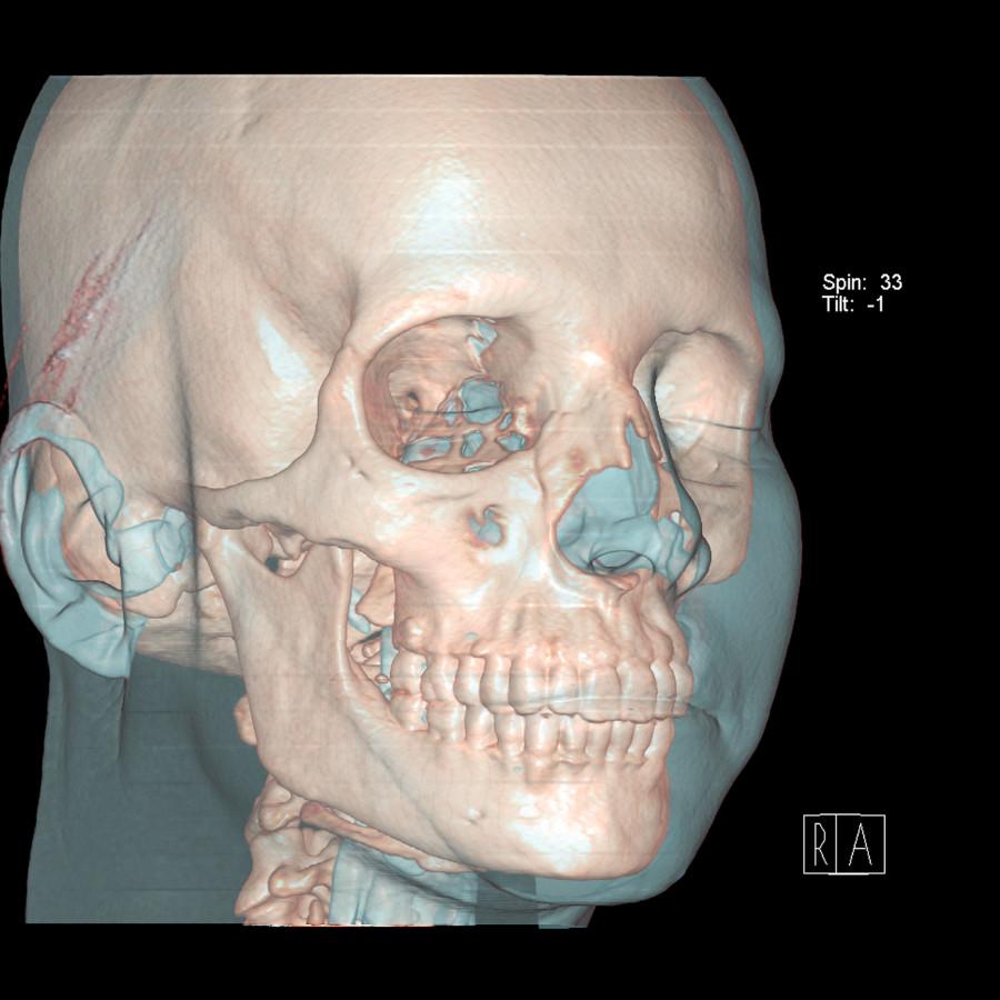 tomografia-computadorizada-cranio