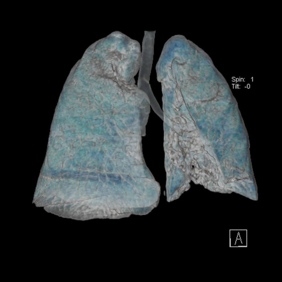 tomografia-computadorizada-pulmao-2-900-900
