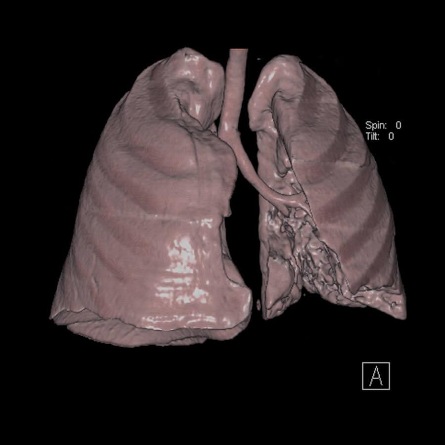 tomografia-computadorizada-pulmao-900-900