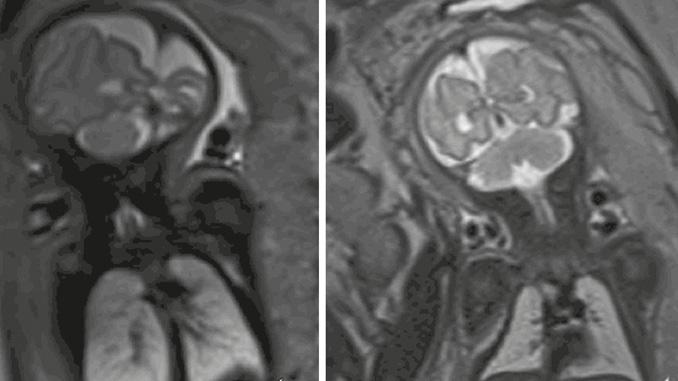 Ressonância magnética fetal: como é realizada?