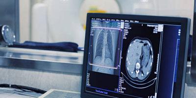 Qual a importância da tomografia computadorizada?