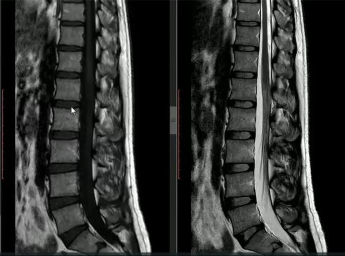 Quando a ressonância magnética de coluna é indicada?