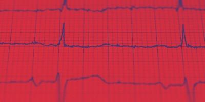 Entenda a importância dos exames de imagem para identificar problemas no coração