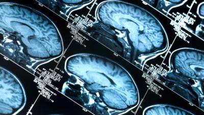Ressonância magnética: quais são os tipos e que doenças elas diagnosticam?