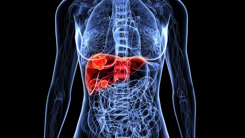 Conheça os exames de imagem que avaliam a saúde do fígado