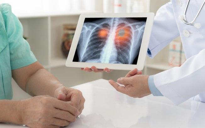 Quais são os exames de imagem que ajudam a diagnosticar doenças pulmonares