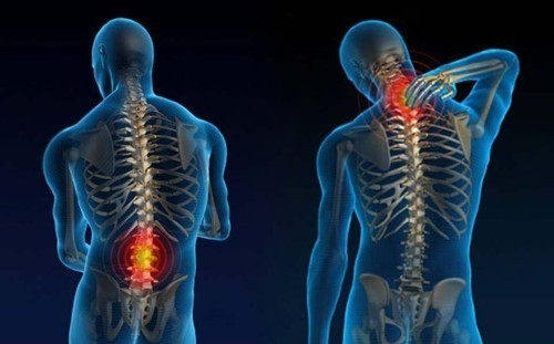 Doenças na coluna podem ser diagnosticadas por exames de imagem