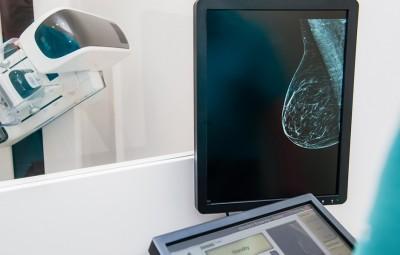 Quando a mamografia digital é indicada?